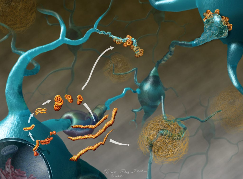 Tangles of misformed proteins bind to neurons inside the brain, leading to neurodegenerative diseases like Alzheimer's.