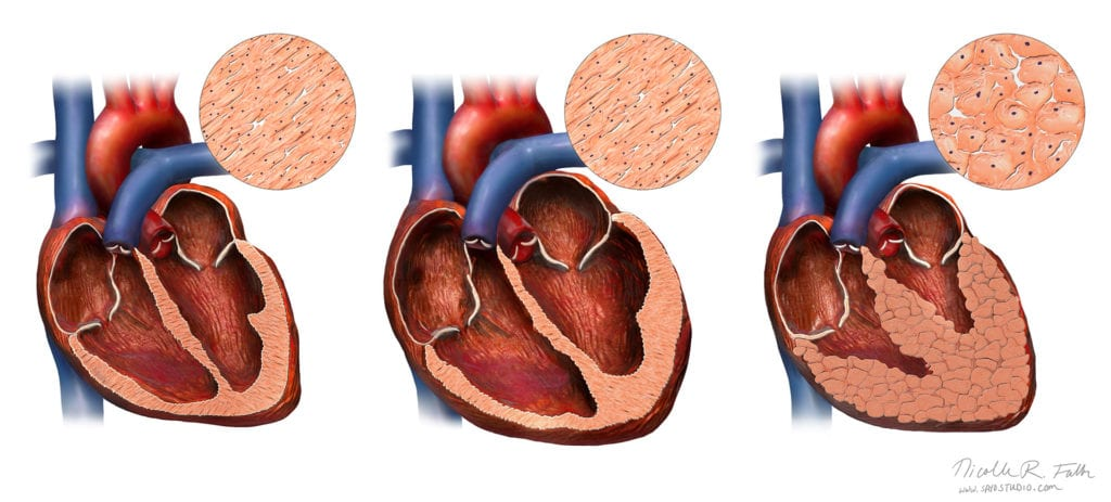 A view of 3 hearts, from left to right: normal heart, athlete's heart, and an athlete's heart with hypertrophic cardiomyopathy disease. This infographic shows the enlargement of the heart walls, as well as the cellular changes. The normal enlargement of an athlete's heart, compared to the abnormal changes in the HCM heart are difficult to discern leading to misdiagnosis and the unexpected sudden cardiac arrest in young atheletes. Created for Science News magazine